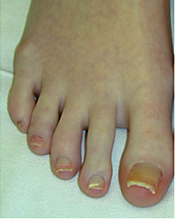 Bent toes straightened and toe shortened  by Foot Surgery Services