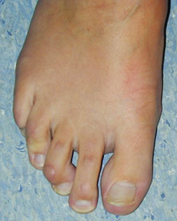 Mallet toe with Callouses
