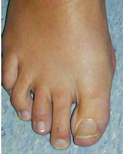Mallet toe with Callouses treated by Foot Surgery Services