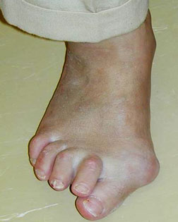Big toe joint pain and inflamation