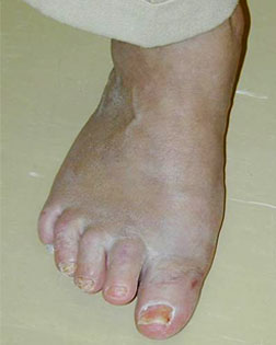 Big toe joint pain and inflamation sucessfully treated by Foot Surgery Services