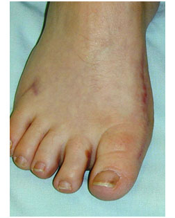 how a foot looks after bunion surgery at Foot Surgery Services