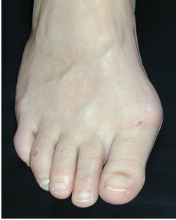another bunion in need of Foot Surgery Services