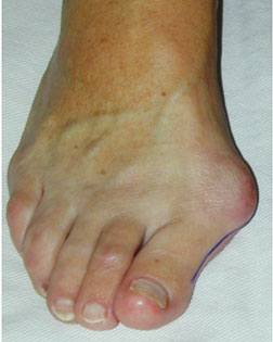 Further Foot Surgery Required