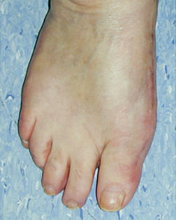 Hammer Toe resolved by Foot Surgery Services