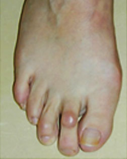 Hammer Toe and Corn