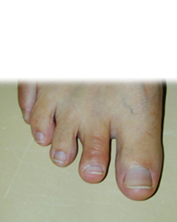 Hammer Toe and Corn treated by Foot Surgery Services