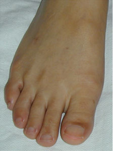Big toe overlap resolved with Foot Surgery Services