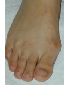 Big Toe overlapping causing nail pain