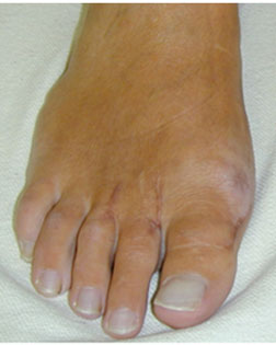 rheumatoidArthritisFeetCorrected-with-Foot-Surgery-Services.jpg