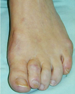 Severe toe overlaps and hammer toes relieved by Foot Surgery Services