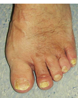 Severe Toe deformities corrected by Foot Surgery Services