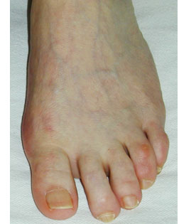 smaller Toes Alignment sorted with Foot Surgery Services