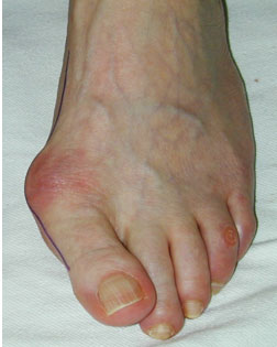 Smaller Toes pushed out of alignment