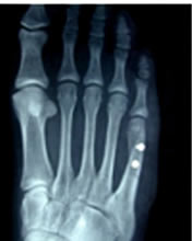 X-Ray of a Tailors Bunion Repaired by Foot Surgery Services