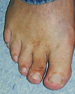 Thickened toe sorted by Foot Surgery Services