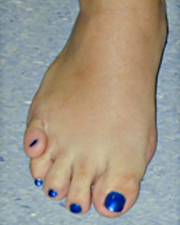 Little Toe Crossing Over
