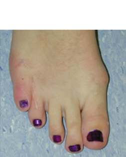 Little toe no longer crossing over and pain totally gone - thanks to Foot Surgery Services