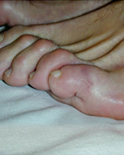Wee Toe no longer Crossing Over thanks to Foot Surgery Services