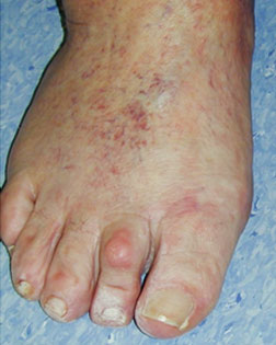 Toe Shortening Required