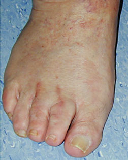 Toe Shortening carried out by Foot Surgery Services
