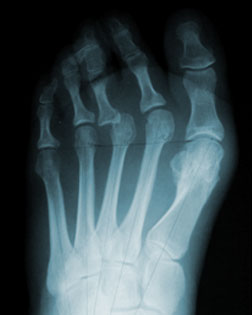 Toe Shortening Surgery Required after Bunion Surgery by another Practice