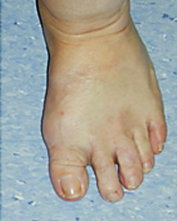 Windswept toes realigned by Foot Surgery Services
